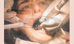 Το οδοντιατρικό αμάλγαμα και η απόφαση που δρομολογεί η Ε.Ε.