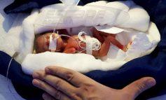 Ένας πραγματικός μαχητής: Αυτό το πρόωρο μωράκι ζύγιζε μόλις 400 γραμμάρια αλλά κατάφερε να επιβιώσει!