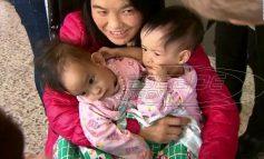 Σιαμαίες από το Μπουτάν διαχωρίστηκαν μετά από επέμβαση έξι ωρών